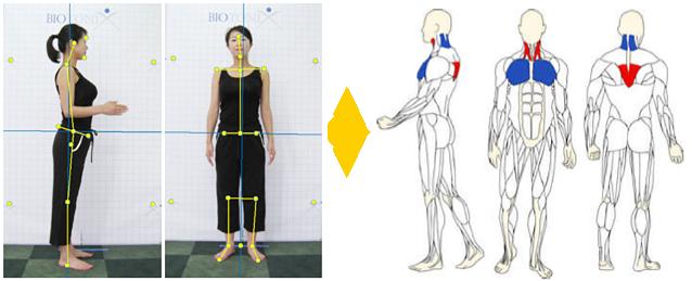 筋膜リリース姿勢分析の例